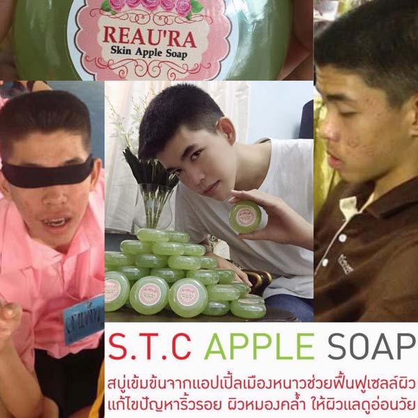 สบู่ผิวขาวใส ไร้สิว REAU RA SKIN APPLE SOAP ผิวเรียบเนียน ใช้ได้ทุกสภาพผิว แม้ผิวแพ้ง่าย ปลอดภัย มี อย ครับ 6ff056e640b597e74ba6996116fc5e44