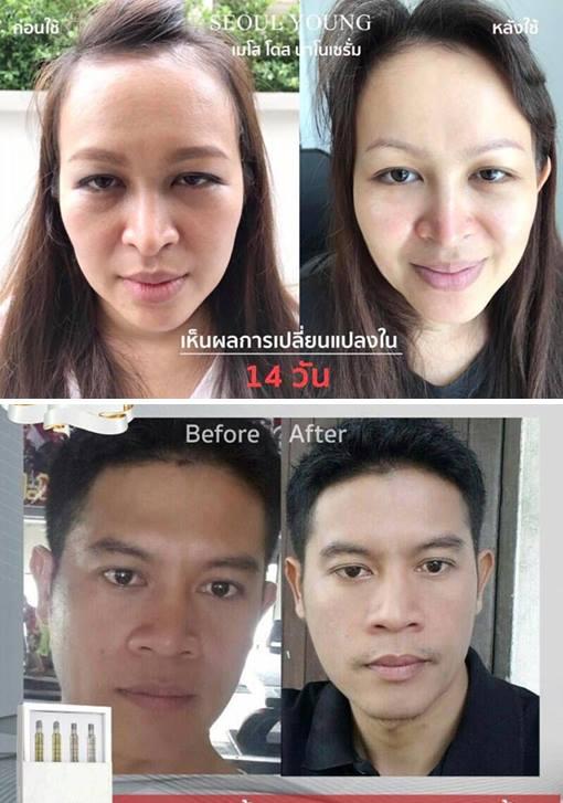 เมโส โดส ไร้หัวเข็ม เจ้าแรกในเมืองไทย! จาก โซล ยัง สกิน แคร์ ปลอดภัย 100% ฟื้นฟูผิวหน้าเร่งด่วน ผิวอ่อนวัย แพ้ง่ายก็ใช้ได้ ด่วน!ราคาพิเศษ 94c282b836a0104d3f963caa48a18dd3